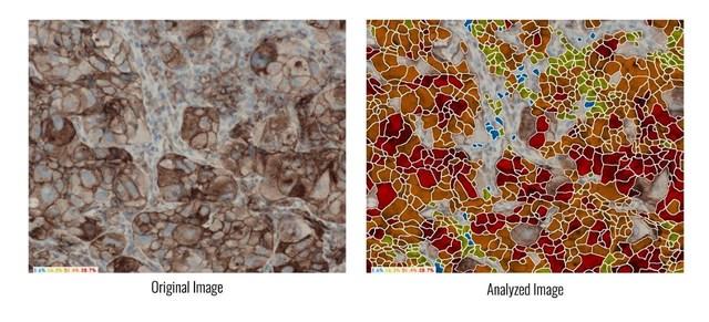 ASI's Advanced Algorithms Automatically Interpret PD-L1 Assays