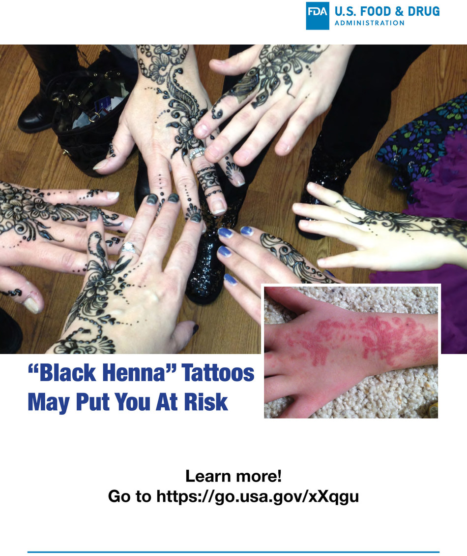 Black Henna Tattoos May Put You At Risk.