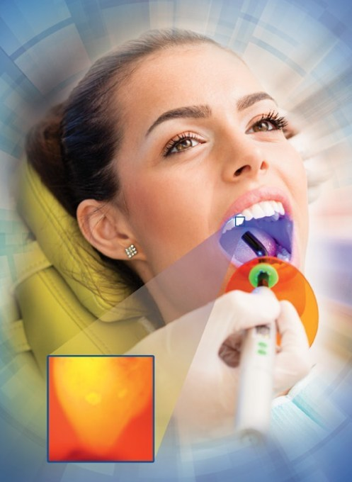 The diagnostic nanoparticles are targeted inside early cavities, and these are illuminated using a standard dental curing light found in all practices.