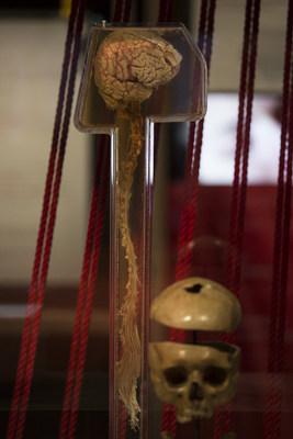 Photo : L'exposition Cerveau à la folie, présentée au Musée de la civilisation du 17 mai 2017 au 11 mars 2018.  Crédit photo : Stéphane Audet, Icône (Groupe CNW/Musée de la Civilisation)