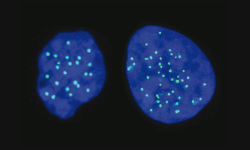 Haploid cell on the left (with 23 chromosomes); Diploid cell on the right (with 46 chromosomes)