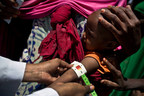 A child is assessed for severe acute malnutrition at a UNICEF-supported mobile clinic at a temporary settlement for families who have been forced to move because of drought in Ainabo, Somalia. © UNICEF/UN057372/Holt (CNW Group/UNICEF Canada)
