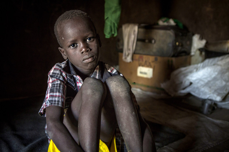 Deng, 7, was separated from his mother during violence in South Sudan. Photo by Jonathan Hyams/Save the Children.