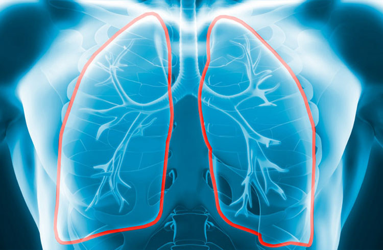 Lung Therapeutics is developing transformative therapeutics for pulmonary disease and fibrosis.