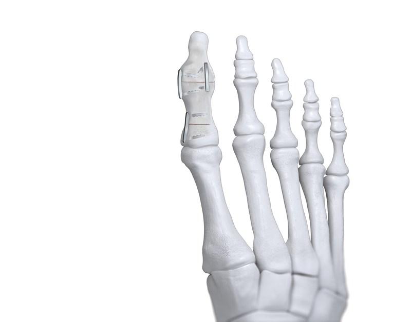 JAWS Nitinol Staple - Akin Osteotomy and IPJ Fusion