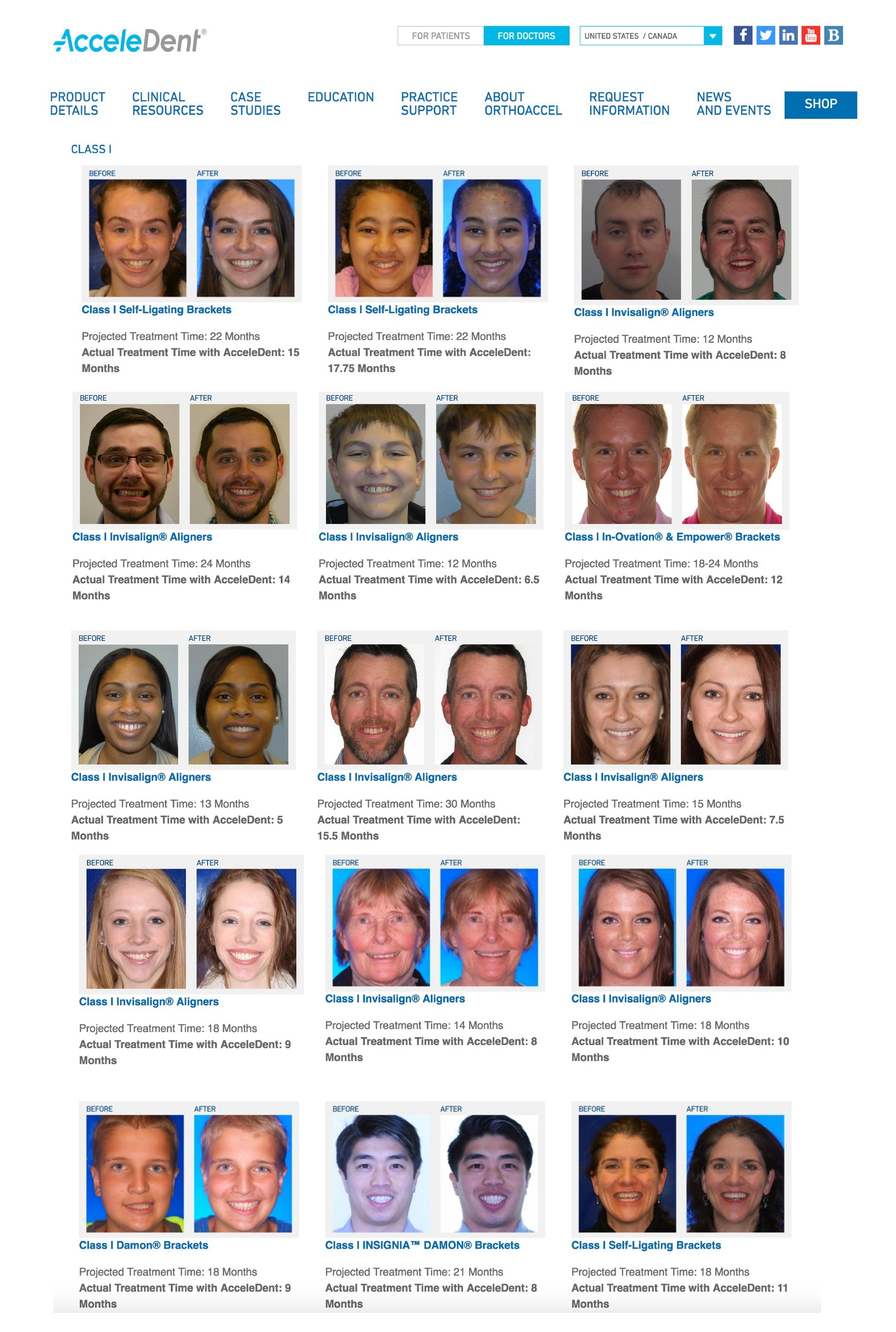 OrthoAccel's new online case gallery includes more than 40 case studies, assembled from 24 orthodontists that show how AcceleDent enabled doctors to accelerate their patients' treatment times to help achieve predictable clinical outcomes. Click here to view the case gallery: https://acceledent.com/orthodontists/case-studies/.