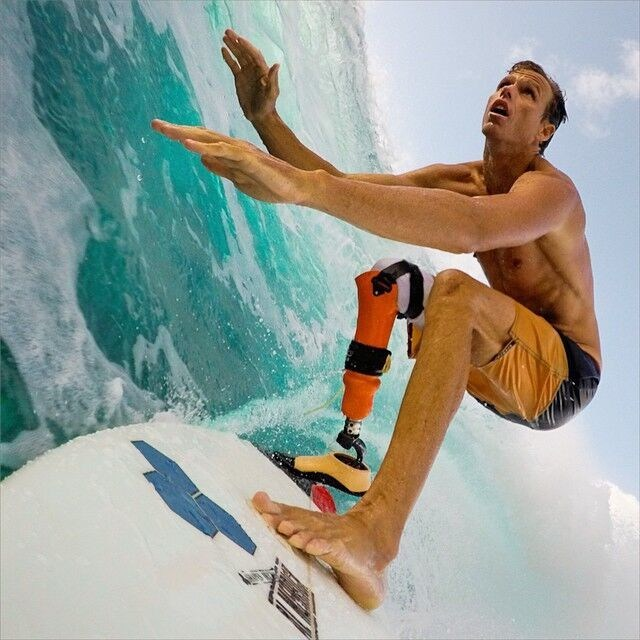 Mike Coots, from Kauai, lost his right leg in a shark attack. He is an accomplished surfer and silver medalist from Team Hawaii at 2016 ISA World Adaptive Surfing Championships.