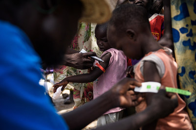 A UNICEF nutrition volunteer measures the mid-upper arm circumference (MUAC) of a child during a health screening as part of a UNICEF Rapid Response Mission to the village of Aburoc, South Sudan, on May 12, 2017. (CNW Group/UNICEF Canada)