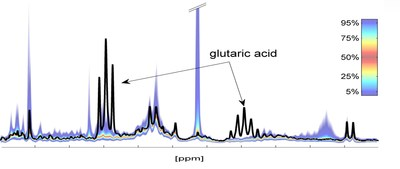 1H NMR spectrum of urine - comparison of individual spectral fingerprint (black) to reference ranges from a healthy population demonstrating a case of significant deviation.