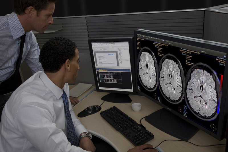 The newest clinical advance on the Intellispace Portal now cleared for U.S. distribution is its Longitudinal Brain Imaging (LoBI).