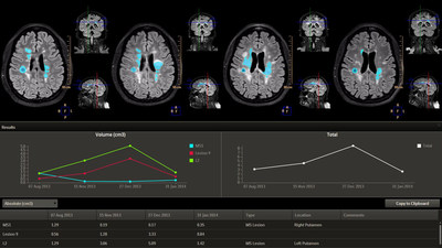 LoBI is an application to analyze brain images to support the evaluation of neurological disorders over time.