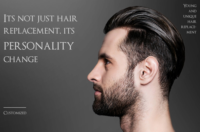 Hairline at the top of the head or a full head hair solution can be customized for you. All of us are unique and should not be discriminated against because of our hair.