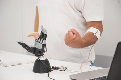Electronic bionic prosthesis of human hand Maxbionics (PRNewsfoto/NUST MISIS)