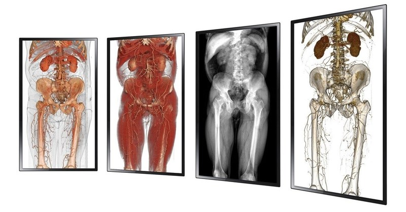 Anatomage Inc. launches the Anatomage Wall, the latest product on the market for visualizing 3D anatomy, system-by-system, side-by-side.
