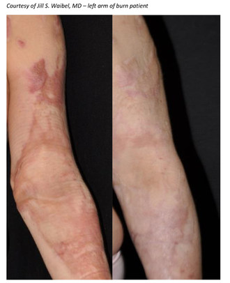 Early Treatment Is Revolutionizing Outcome Of Burn Scars