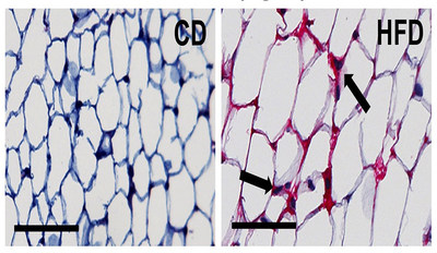 The image on the right shows fibrinogen deposits (red areas) that have accumulated in the white adipose tissue of a mouse fed a 60-percent, high-fat diet. The image on the left is tissue from a control mouse on a regular diet. Researchers report in the Journal of Clinical Investigation they uncovered a previously unknown molecular link in the body that drives obesity and inflammation, which are linked to cardiovascular disease, type 2 diabetes, fatty liver disease and several cancers.