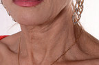 Viral Neck-Wrinkle Remover Relaunches on Amazon