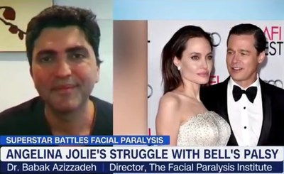 Dr. Babak Azizzadeh Provides Medical Expertise on Facial Paralysis During a MichaeLA LIVE interview on HLN After Angelina's Bell's Palsy Recovery