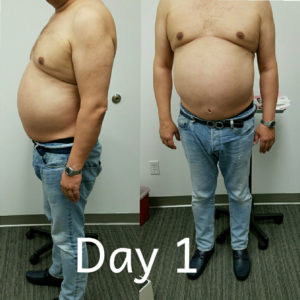 Before photo of one of our patients