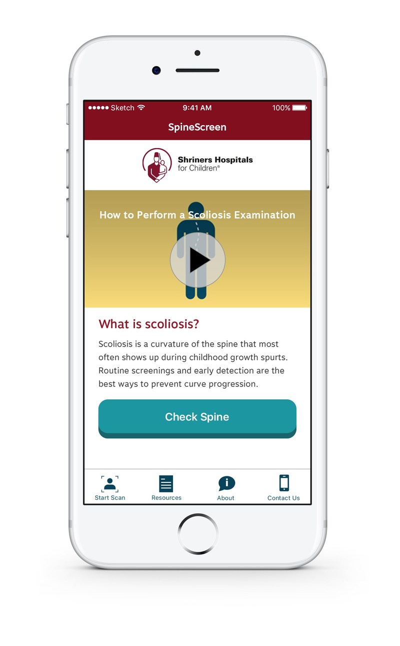 SpineScreen app developed by the orthopaedic specialists at Shriners Hospitals for Children®