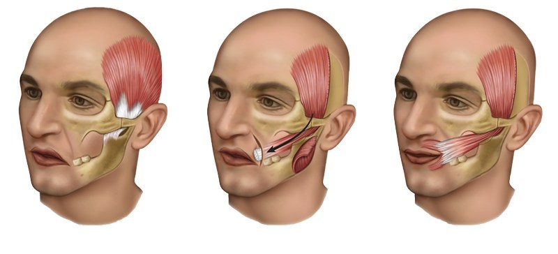 Lengthening Temporalis Myoplasty for Single-Stage Smile Reconstruction