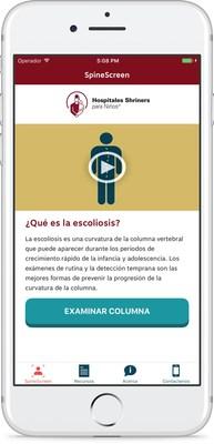 SpineScreen, desarrollada por los Hospitales Shriners para Niños®