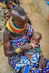 9 month old baby receives nutrition supplement at World Vision Food Distribution Centre in Kenya. (CNW Group/World Vision Canada)