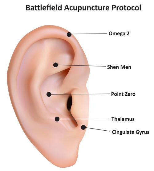 Ear Treatment Points for Battlefield Acunpuncture