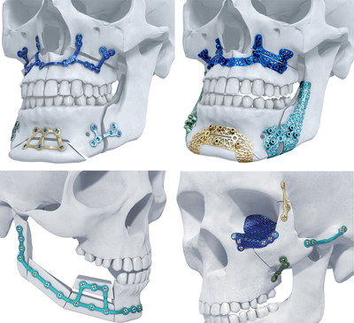TRUMATCH® Titanium 3D-Printed Implants