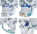 TRUMATCH® Titanium 3D-Printed Implants Launch in the U.S.