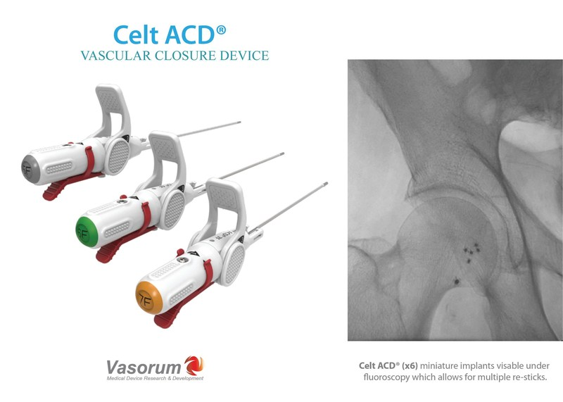 Celt ACD® Vascular Closure Device in 5F, 6F and 7F Sizes is indicated for arterial puncture closure in both diagnostic and interventional cardiology and radiology patients; it offers excellent time to hemostasis in a wide variety of clinical situations. Celt ACD® allows immediate closure of multiple re-sticks in patients with peripheral vascular disease. The device was designed to help achieve more efficient cath lab workflow by providing rapid and definitive closure therefore allowing for early patient ambulation and hospital discharge. (PRNewsfoto/Vasorum Ltd)