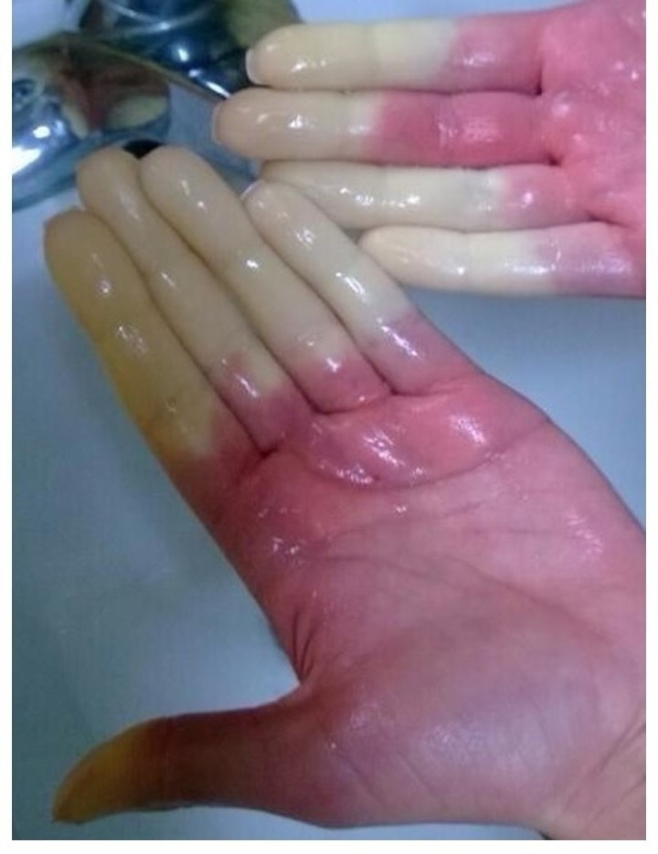 Color changes in the fingers are a common marker for Raynaud's Phenomenon