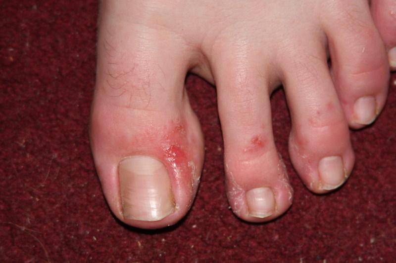 Pediatric case of foot dermatitis. copyright: SmartPractice