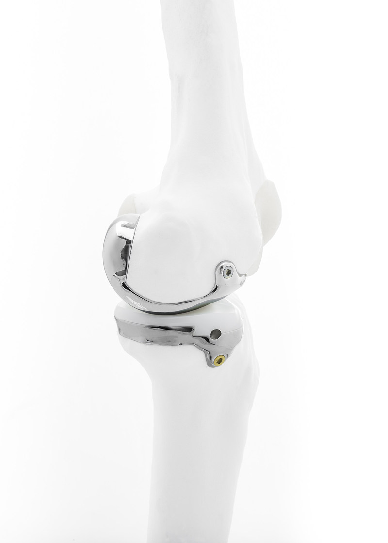 Bodycad's Unicompartmental Knee System provides a truly personalized orthopaedic restoration designed to match the exact anatomical needs of a patient.