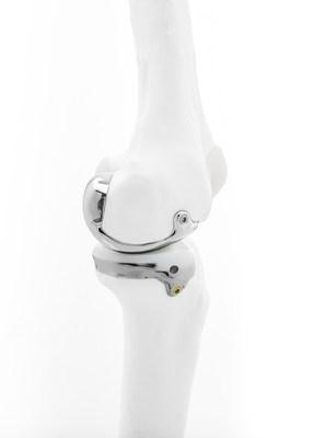 Le mécanisme unicompartimental pour le genou de Bodycad permet une restauration orthopédique véritablement personnalisée conçue pour correspondre aux besoins anatomiques précis du patient. (PRNewsfoto/Bodycad)
