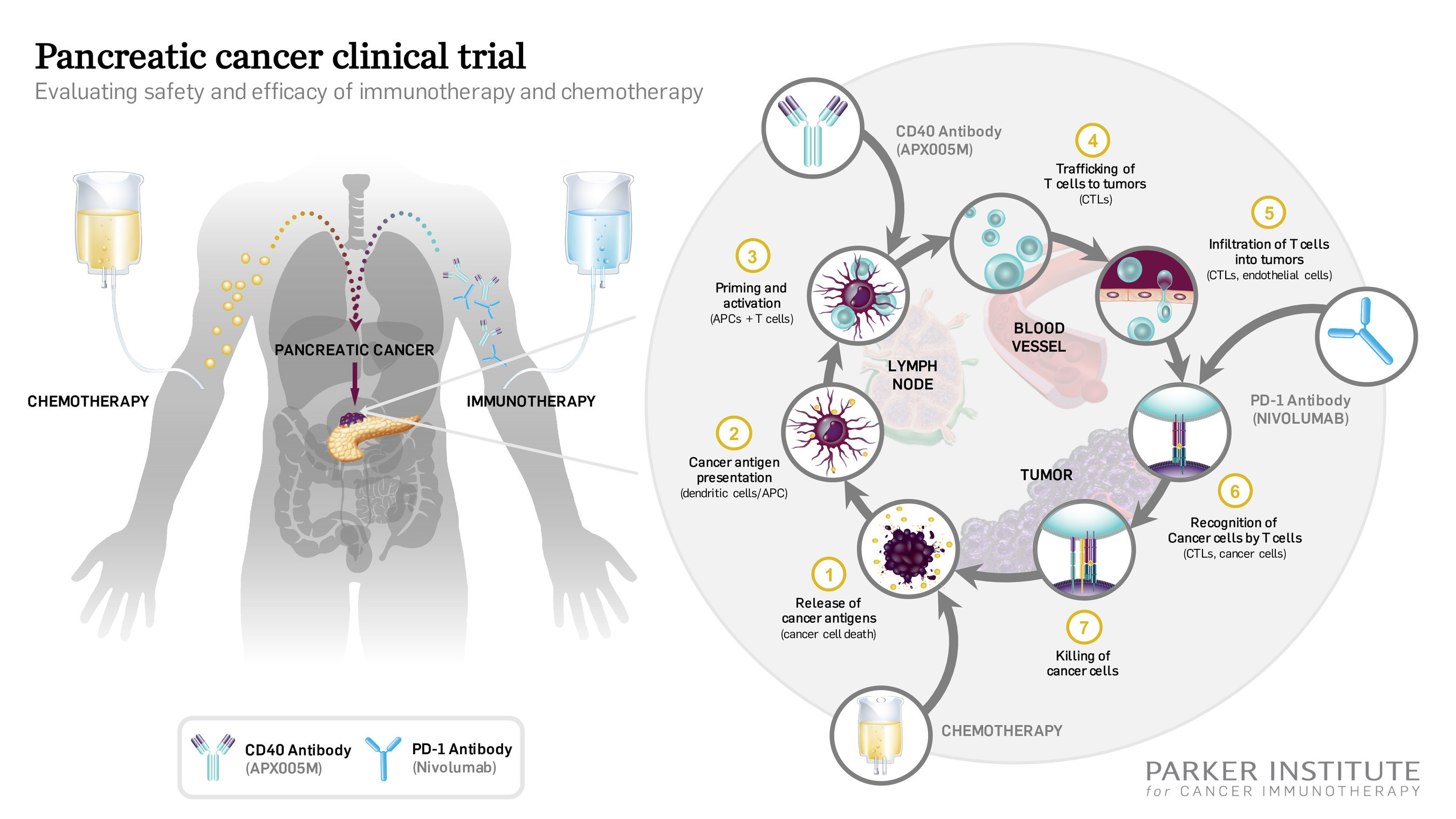 The first patients have begun treatment in a new pancreatic cancer clinical trial sponsored by the Parker Institute for Cancer Immunotherapy. The study explores the combination of standard of care chemotherapy and two immunotherapies, a PD-1 checkpoint inhibitor and a novel CD40 antibody. Cancer immunotherapy utilizes the immune system to tackle tumors.