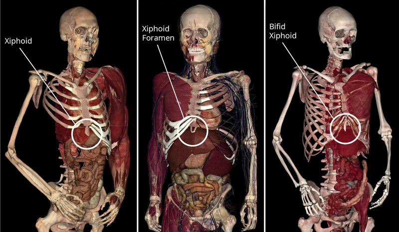 A foramen on the xiphoid process is a small hole that normally causes no functional issues or symptoms. Some individuals may even have a bifid xiphoid, where the cartilage is split in two. These 3D images are from the Anatomage Table's high-tech anatomy visualization software.