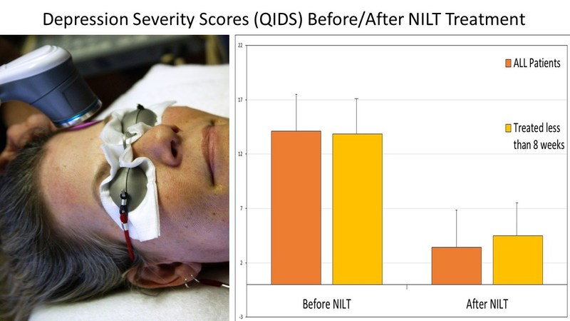 Depression Severity Scores (QIDS) Before/After NILT Treatment