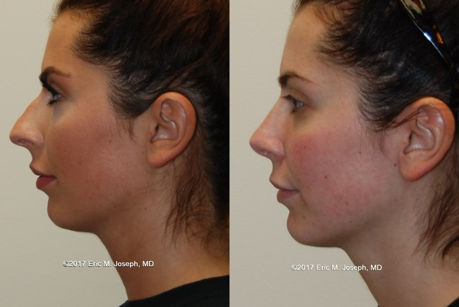 Eric M. Joseph, M.D. Rhinoplasty before and after