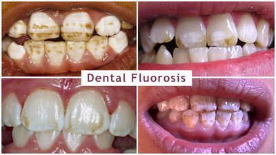Dental fluorosis is a sign of fluoride toxicity and can range from very mild to severe. This photo is from Dr. David Kennedy of the International Academy of Oral Medicine and Toxicology (IAOMT) and is used with permission from victims of dental fluorosis.