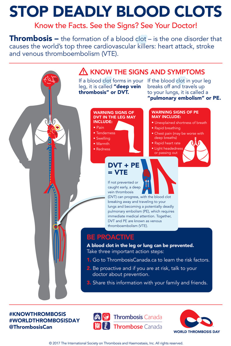 "October 13, 2017 is World Thrombosis Day.  One in four Canadians die from causes related to blood clots, also known as ""thrombosis"".  Learn more at #KNOWTHROMBOSIS on Twitter, or visit www.ThrombosisCanada.ca. (CNW Group/Thrombosis Canada)"
