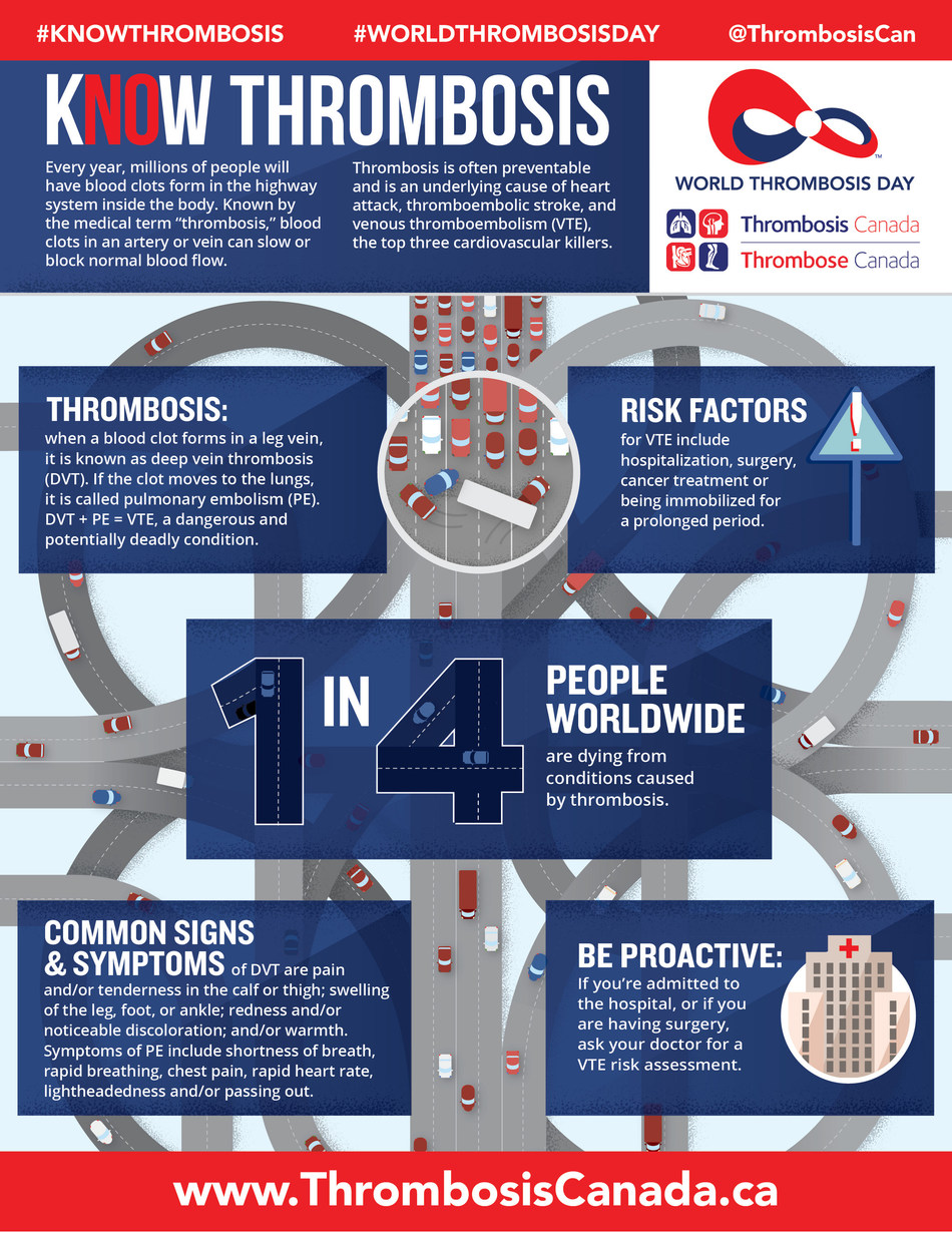 """October 13, 2017 is World Thrombosis Day.  One in four Canadians die from causes related to blood clots, also known as """"thrombosis"""".  Learn more at #KNOWTHROMBOSIS on Twitter, or visit www.ThrombosisCanada.ca. (CNW Group/Thrombosis Canada)"""