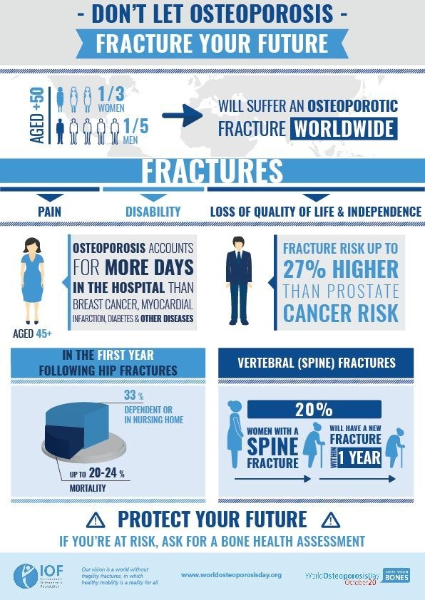 On World Osteoporosis Day, October 20, the International Osteoporosis Foundation (IOF) urges people around the globe to take action for bone health and osteoporosis prevention. Fractures due to osteoporosis can be disabling and life-threatening. A bone-healthy lifestyle, early diagnosis and timely management will help you protect your future mobility and independence. www.worldosteoporosisday.org (PRNewsfoto/IOF)