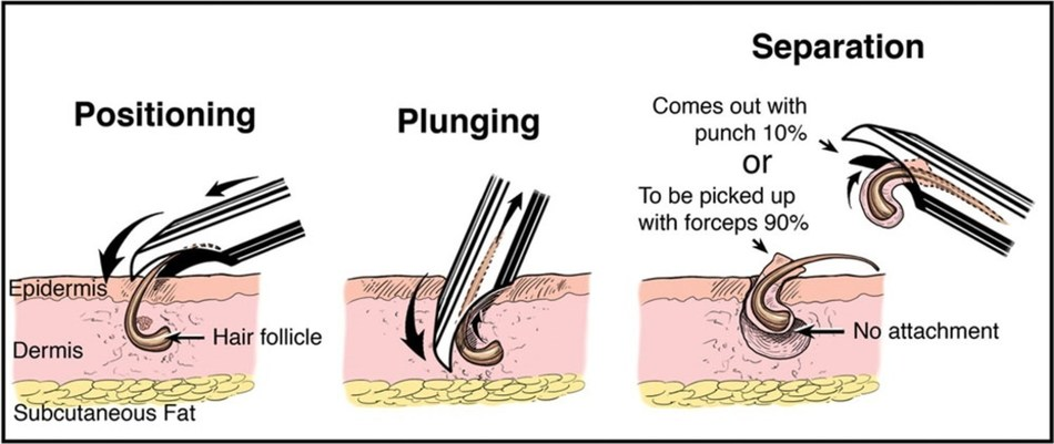 UPunch Curl invented by Dr. Sanusi Umar offers a new approach to African-mixed patients for FUE Hair Transplant Surgery.