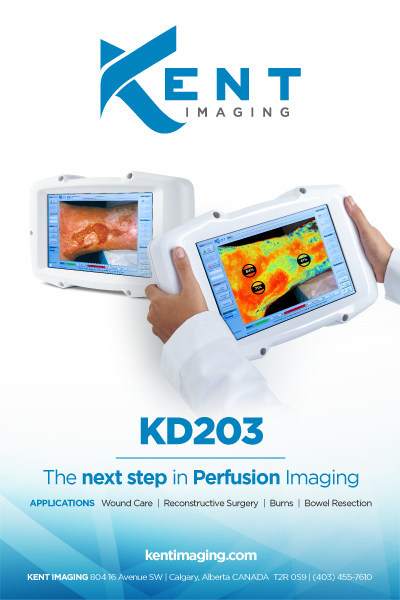 Kent Imaging KD203 – the next step in perfusion imaging (CNW Group/Kent Imaging Inc.)