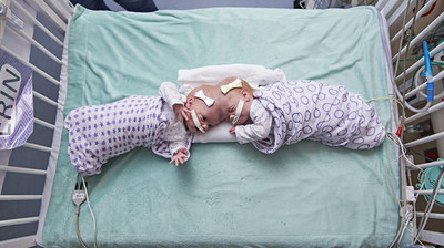Formerly Conjoined Twins, Erin and Abby Delaney, Thriving Months After Separation Surgery at Children's Hospital of Philadelphia