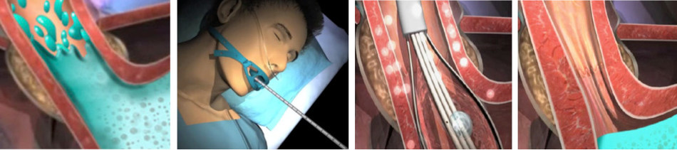Stretta is a non-surgical, endoscopic, outpatient treatment for GERD that delivers low levels of radiofrequency energy to the muscle between the stomach and the esophagus. GERD symptoms occur when this muscle is weak and stomach contents reflux up into the esophagus. Mechanistic studies show that Stretta instigates growth of smooth muscle and decreases tissue compliance, allowing fewer reflux events and leading to a significant improvement in GERD symptoms. (PRNewsfoto/Mederi Therapeutics Inc.)