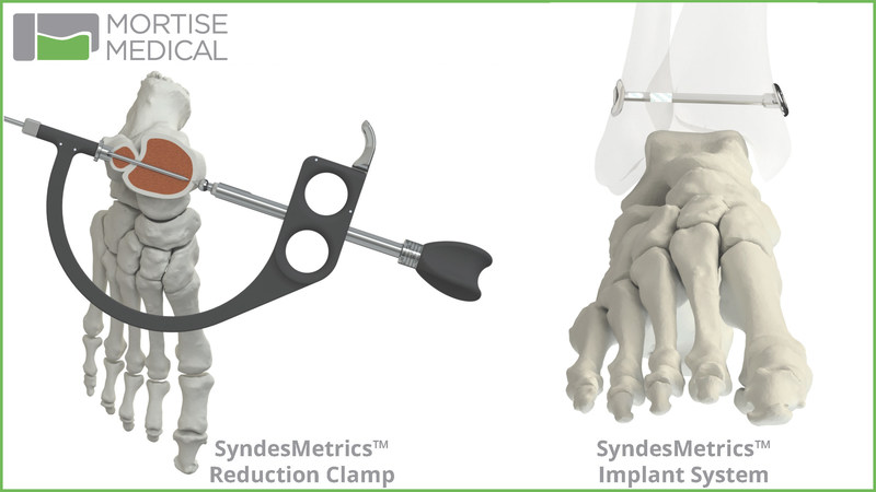 Mortise Medical SyndesMetrics Syndesmosis Repair System