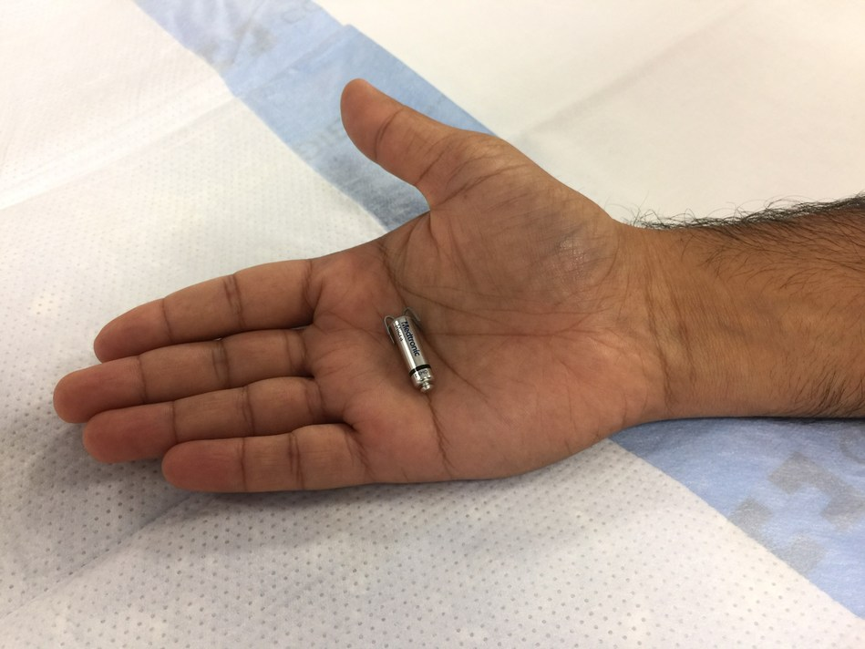 World's smallest pacemaker is the size of a vitamin.