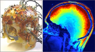Riccardo Lattanzi, one of the young researchers selected for the prestigious National Academy of Engineering Frontiers of Engineering conference, is trying to improve diagnoses by understanding and exploiting the interaction of electromagnetic fields with tissues in MRI. At left is a 32-channel MRI coil prototype developed by his research group to detect magnetic fields. The illustration at right shows the measured distribution of the magnetic field in the brain tissue.
